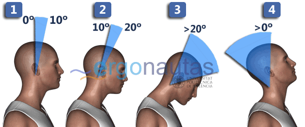 RULA - Puntuación del cuello